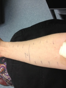 prick testing on my arm